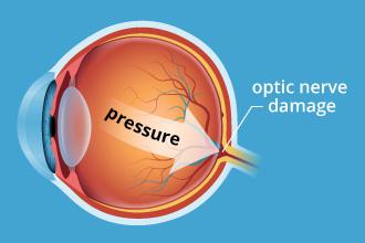 Glaucoma cause