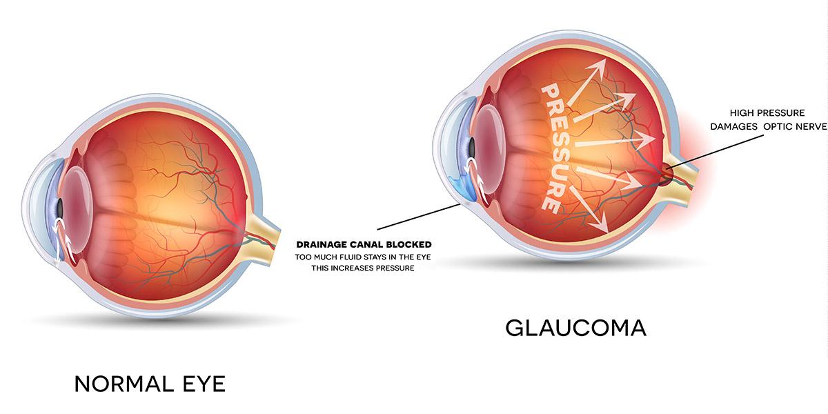 Eye diagram 2